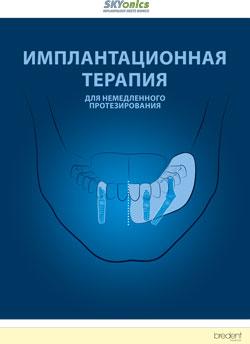 Имплантационная терапия для немедленного протезирования